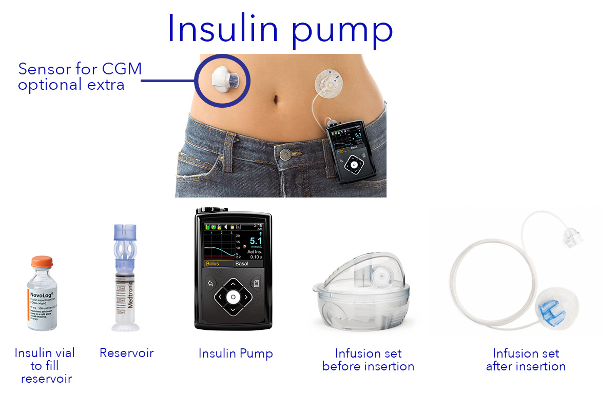 diabetic insulin pump Learn about the insulin pump for diabetes the pump is about the size of a pager and can be programmed to deliver insulin based on your lifestyle make living with diabetes easier.